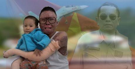 Thuong uy vu roi may bay o Hoa Lac: 'Toi dau xot qua' - Anh 1