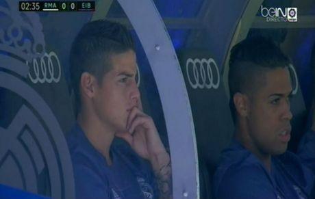Dai ngan ha Real Madrid dan lim toi vi bao chan thuong - Anh 1