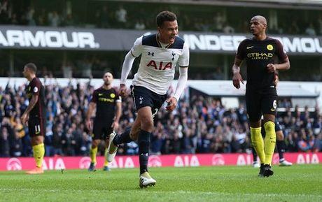 Guardiola: 'Man City khong hoan hao. Chung toi yeu hon Tottenham nhieu' - Anh 2