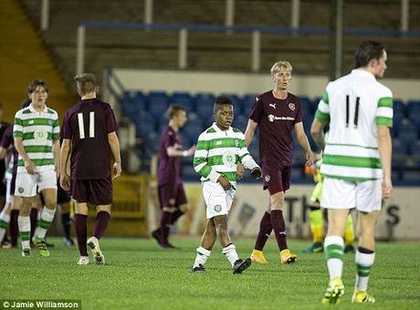 Sao nhi 13 tuoi da ra mat U20 Celtic tung khien doi tre Barca 'phat dien' - Anh 2