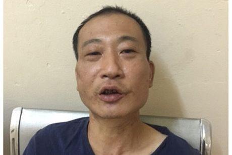 Giai cuu thanh cong chau be bi ke 'ngao' da khong che - Anh 1