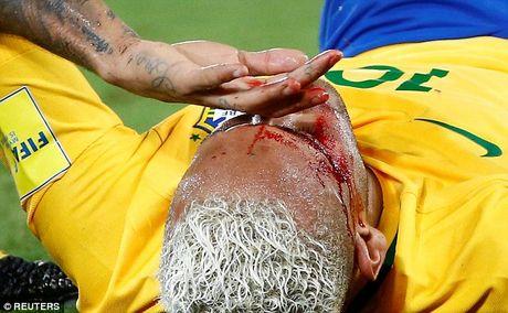 Can canh Neymar do mau - Anh 5