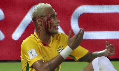 Neymar toa sang va do mau o chien thang 5-0 cua Brazil - Anh 22
