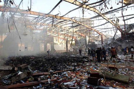 Khong kich gan 700 nguoi thuong vong Yemen: Suc ep ran nut My - Saudi - Anh 1