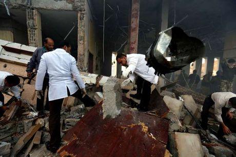 Khong kich gan 700 nguoi thuong vong Yemen: Suc ep ran nut My - Saudi - Anh 2