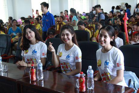 Hoa khoi Sinh vien Ha Noi tham benh nhi tai Bac Giang - Anh 1