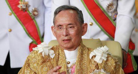 Nha vua Thai Lan bat ngo om nang - Anh 1