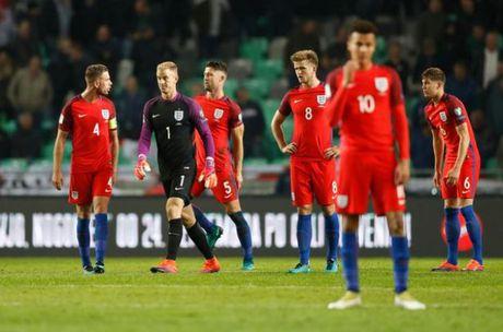 5 diem nhan sau tran Slovenia 0-0 Anh: Nhat nhoa vi Wayne Rooney? - Anh 2
