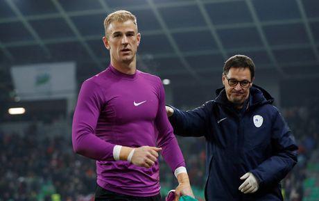 Joe Hart thua nhan tuyen Anh be tac truoc Slovenia - Anh 1