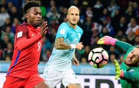 Slovenia 0-0 Anh: Joe Hart toa sang, Tam su thoat hiem hu via - Anh 4