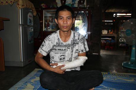 Dinh chi Truong Cong an xa bi to danh nguoi gay thuong tich - Anh 1