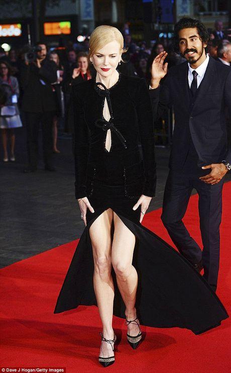 Ngo ngang sac voc tre dep ruc ro cua Nicole Kidman - Anh 8