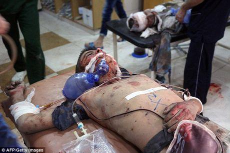 Am anh canh be trai Syria bi vui lap boi bom dan - Anh 4