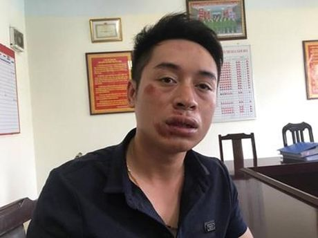 Khong doi mu bao hiem, dam CSGT gay 2 rang cua - Anh 2