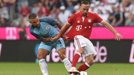Sao Bayern gap chan thuong 'vo duyen' - Anh 2