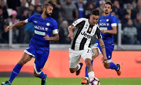Juventus 2–1 Udinese: Dybala ruc sang trong ngay Higuain duoc vinh danh - Anh 2