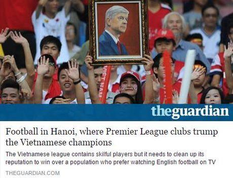 Bao Guardian: V-League can mot cuoc dai cai to - Anh 1