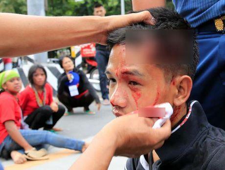 Hien truong xe canh sat lao vao nguoi bieu tinh o Philippines - Anh 9