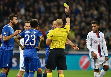 Buffon can pha 11 m, Juventus thang trong tran mat nguoi - Anh 4