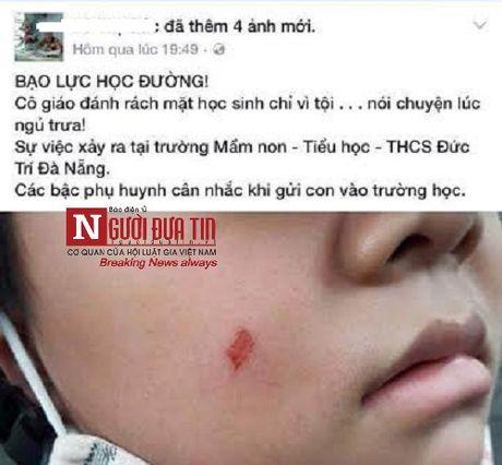 Phat 7 trieu phu huynh danh nham dong nghiep vi con bi cao xuoc ma - Anh 1