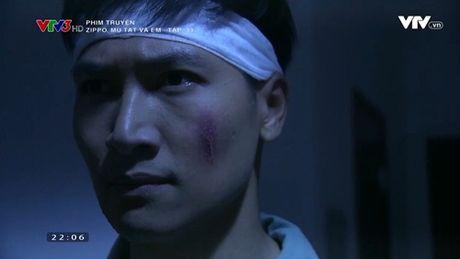"""Sen"" nhu phim Han: ""Zippo, Mu tat va Em"" de Manh Truong mat tri nho sau tai nan - Anh 8"