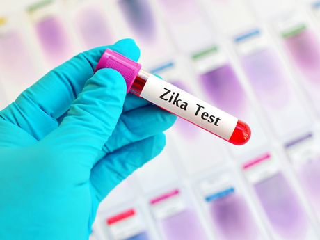 5 tinh thanh ghi nhan benh nhan nhiem vi rut Zika - Anh 1