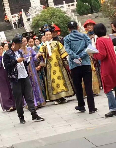 Che chan kin mit, Hoac Kien Hoa van bi deo bam - Anh 10