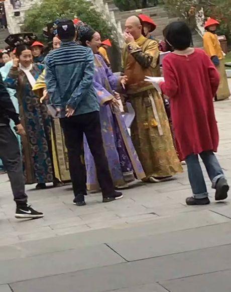 Che chan kin mit, Hoac Kien Hoa van bi deo bam - Anh 9