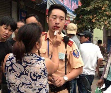 Ha Noi: Danh gay rang CSGT, thanh nien 9X bi khoi to - Anh 1