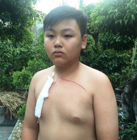 TP Thanh Hoa: Thay giao THCS danh hoc sinh bi thuong - Anh 3