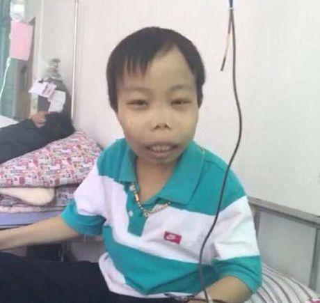 'Dai gia xau nhat the gioi' xin tien chong choi benh hiem ngheo - Anh 4