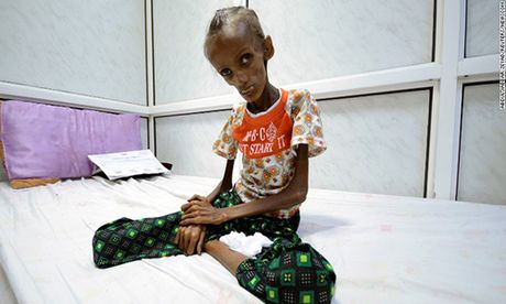 Khung hoang Yemen: Hang trieu nguoi co nguy co chet doi - Anh 1