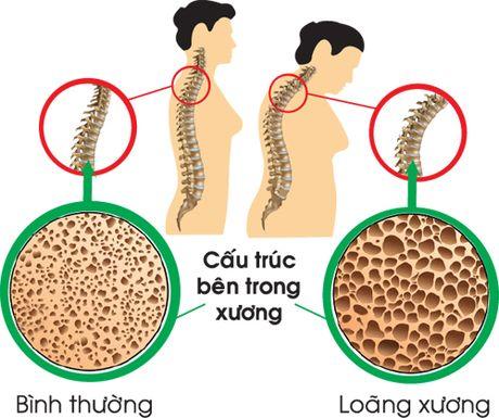 Chi su dung calcitonin trong thoi gian ngan nhat - Anh 1