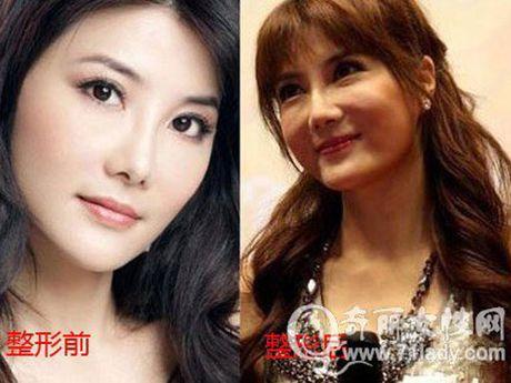 Kho nhan ra 'nu than Kung Fu' vi guong mat bien dang - Anh 5