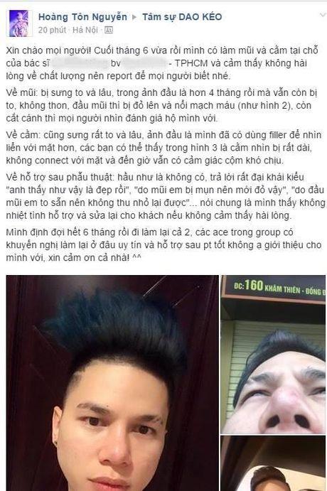 Sao Nam Viet va con cuong loan sac dep khi nho cay dao keo - Anh 1