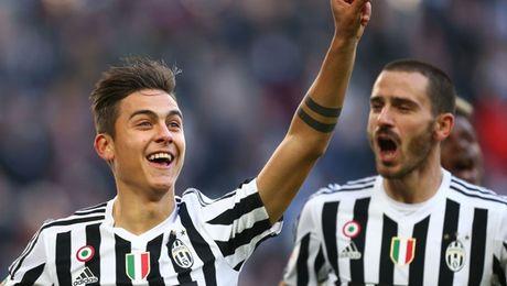 Juventus tien hanh 'troi chan' cac tru cot - Anh 1