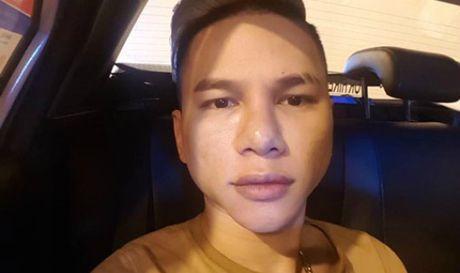 Guong mat bien dang sau phau thuat, Hoang Ton 'cau cuu' cong dong - Anh 1