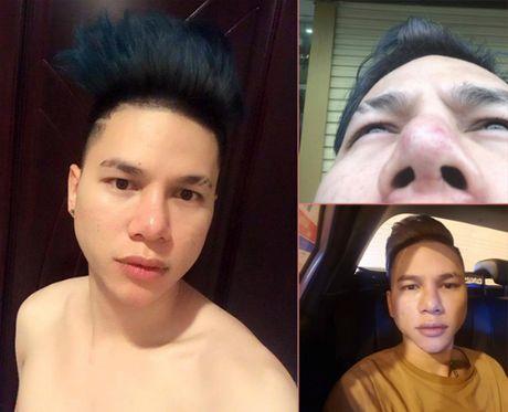 Sao Viet 'bien dang' sau tham my: Sac dep va su canh tinh - Anh 1