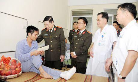Tham hoi, tang qua can bo Truong Dai hoc PCCC bi thuong khi lam nhiem vu - Anh 1