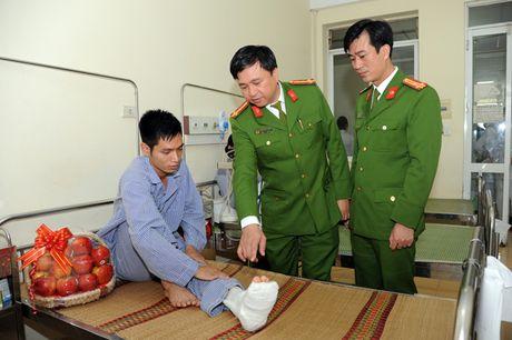 Tham hoi, tang qua can bo Truong Dai hoc PCCC bi thuong khi lam nhiem vu - Anh 2