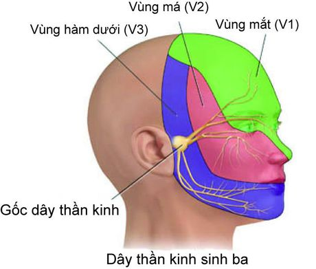 Chan doan nguyen nhan dau than kinh sinh ba - Anh 1