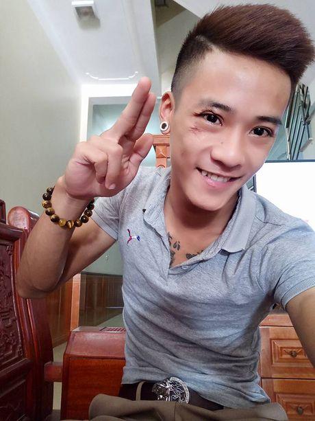 Dieu it biet ve Dat Co - chang trai tai nang nhung doan menh - Anh 8