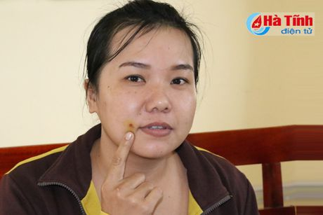 Nguoi dan Cam Xuyen 'rung minh' voi kien ba khoang! - Anh 1