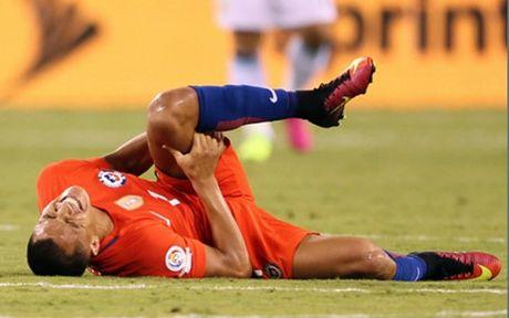 Sanchez chan thuong, Wenger 'dung ngoi khong yen' - Anh 1