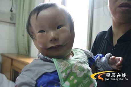 Sieu am thai binh thuong, me chet lang khi sinh con '2 mat' - Anh 1