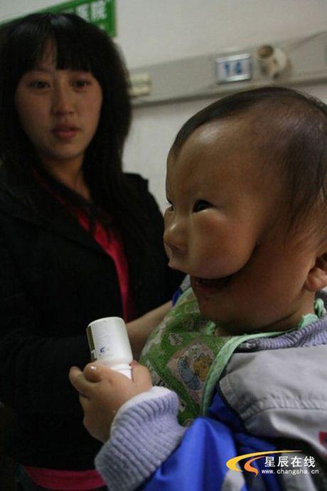 Sieu am thai binh thuong, me chet lang khi sinh con '2 mat' - Anh 3