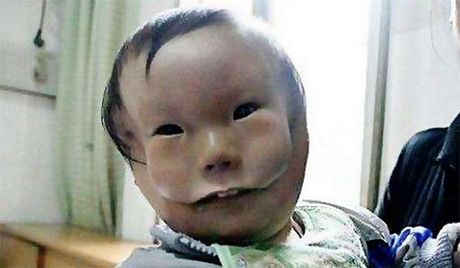 Sieu am thai binh thuong, me chet lang khi sinh con '2 mat' - Anh 5