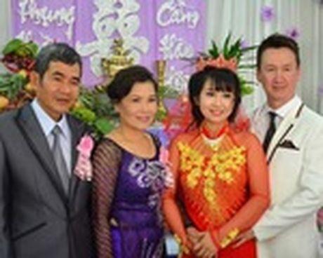 Chuyen tinh dep kho tin (22): Cam dong co gai vay tien 'tan trang' khuon mat cho ban trai - Anh 1