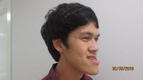 Chuyen tinh dep kho tin (22): Cam dong co gai vay tien 'tan trang' khuon mat cho ban trai - Anh 3