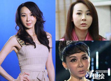 Diem mat sao Hoa ngu nghien Botox - Anh 4